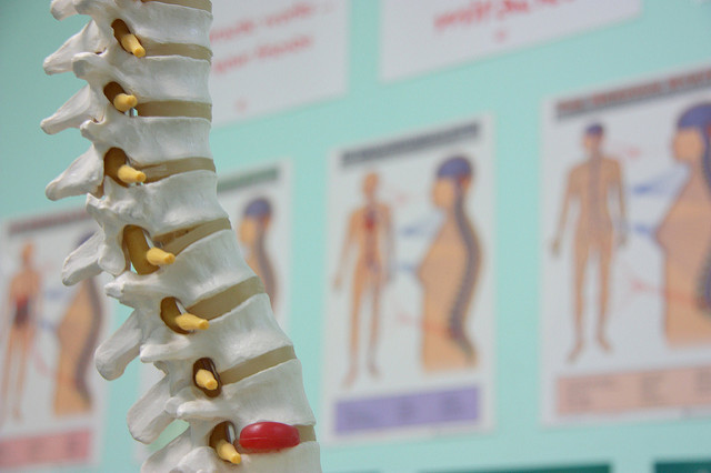Herniated Disc Therapy Largo Coastal Chiropractic